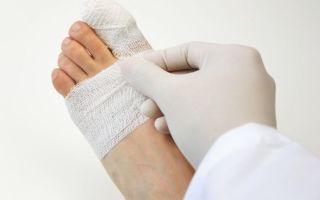 Реабилитация после перелома пальца ноги