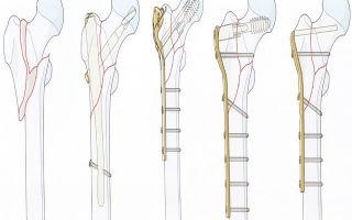 Особенности лечения перелома тазобедренного сустава