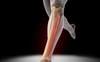 Особенности перелома большой берцовой кости