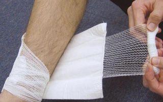 Как вылечить мокнущую рану?