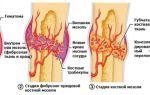 Объясняем как срастаются кости после перелома