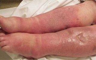 Первая помощь при химическом ожоге кожи
