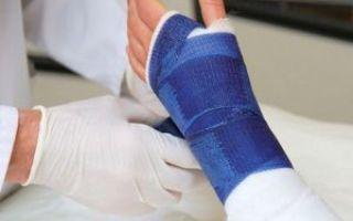 Последствия перелома ладьевидной кости