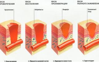 Отзывы о мази для заживления после операции