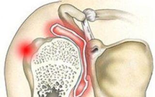 Почему возникает перелом плечевой кости?