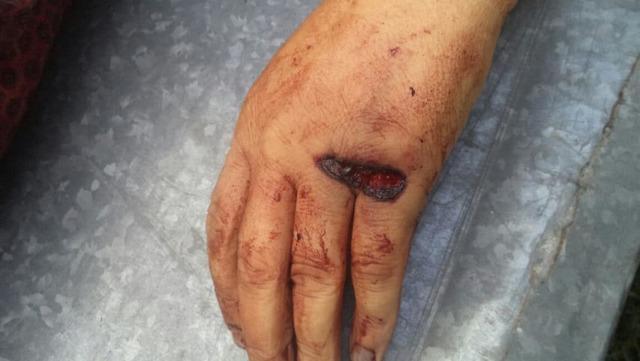 Огнестрельная рана: классификация и особенности лечения