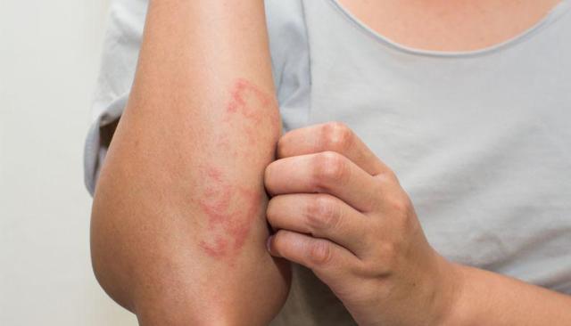 Медицинский клей для ран и порезов: нанесение и удаление пленки
