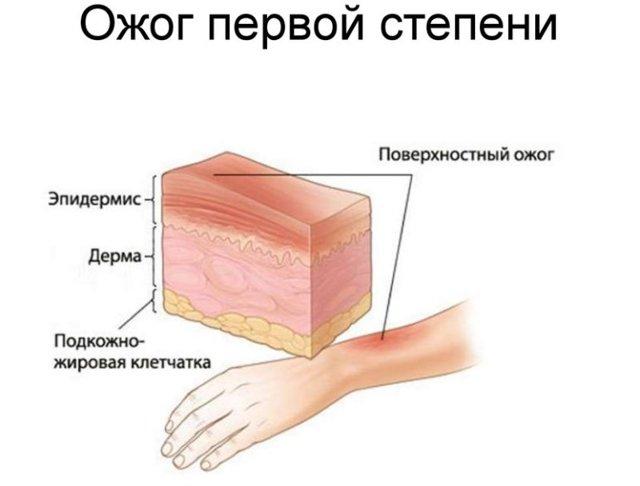 Ожог лица: первая помощь и последующее восстановление кожи