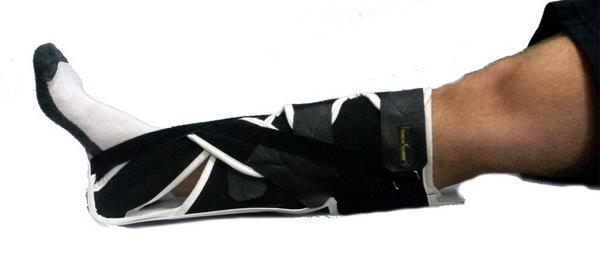 Сапожок при переломе шейки бедра своими руками