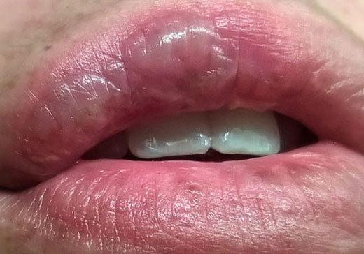 Что делать при ожоге губ – лечение и первая помощь