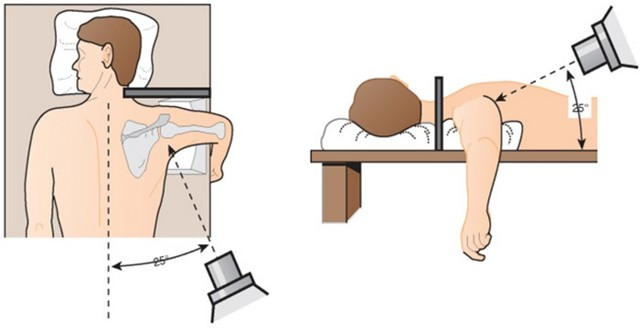 Привычный вывих сустава: лечение с операцией и без
