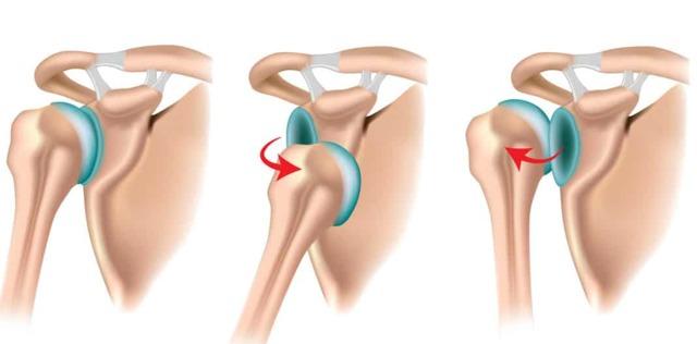 В чём разница между вывихом и подвывихом сустава?