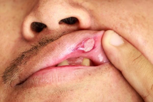 Ранка во рту на слизистой: лечение мазями в домашних условиях