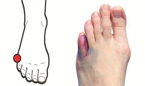 Ушиб мизинца на ноге: симптомы, первая помощь и лечение