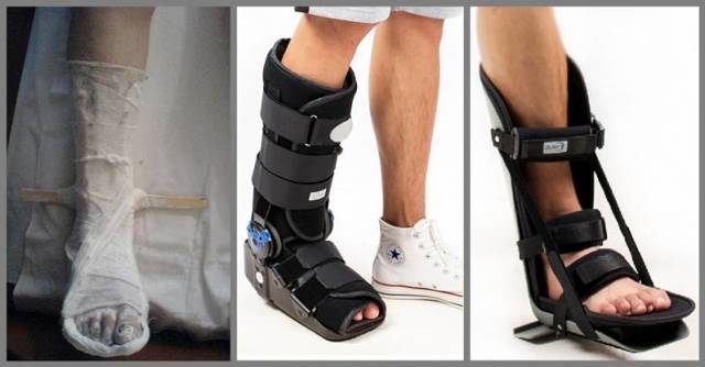 Чем заменить гипс при переломе на ноге, руке?