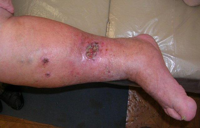 Скальпированная рана головы или пальца: код по МКБ 10 и лечение