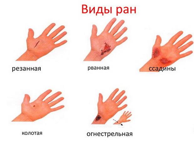 Рана на голове: особенности и виды, описания всех видов травм