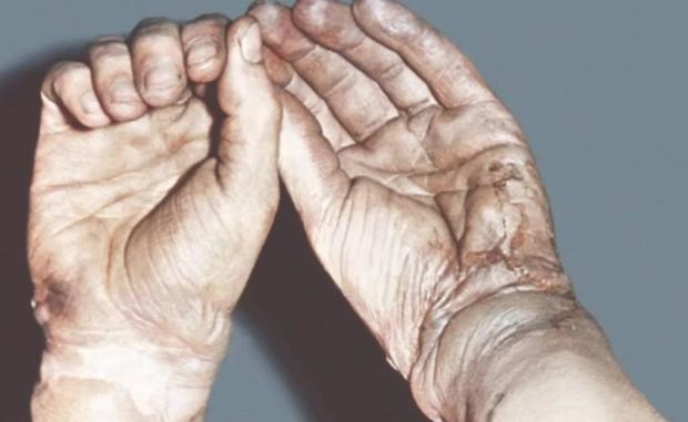 Ожог кислотой: первая помощь и дальнейшее лечение