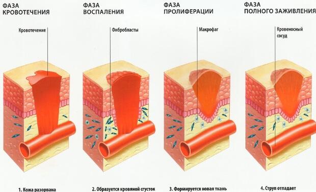 Чем лучше мазать раны: лучшие средства для заживления ран, отзывы