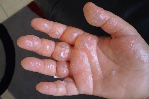 Ожог горячий растительным маслом: что делать и как лечить