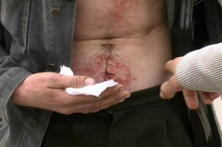 Пмп при резаной ране