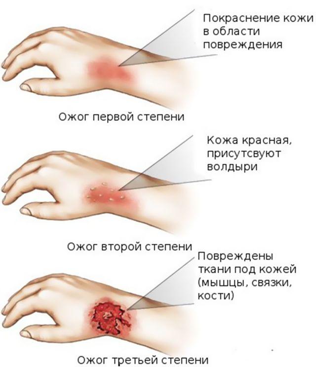 Ожог руки: что делать, как лечить и убрать след