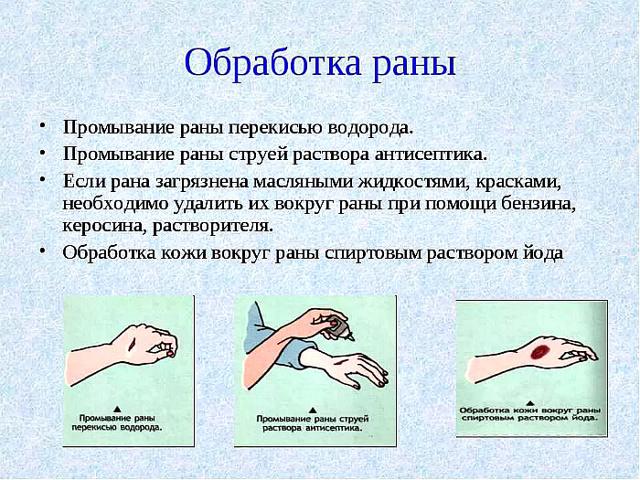 Лечение гнойных ран: чем обработать и что делать
