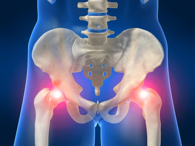 Как правильно лечить перелом тазобедренного сустава?