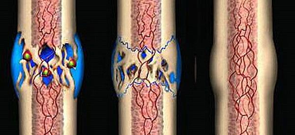 Как срастаются кости после перелома и как ускорить этот процесс?