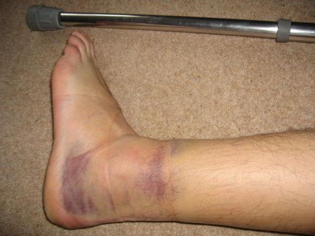 Первая помощь и лечение при открытом переломе ноги