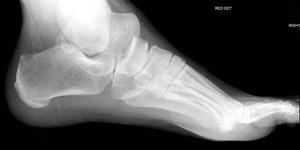 Перелом таранной кости: виды, признаки, первая помощь и лечение