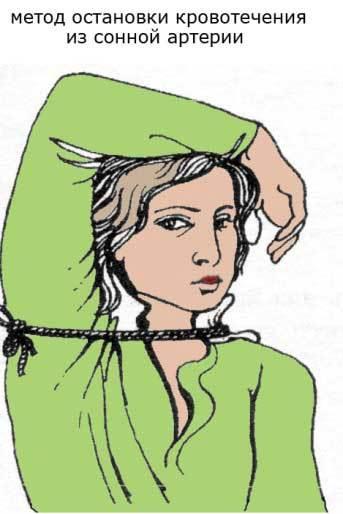 Как правильно наложить жгут: инструкция и типичные ошибки