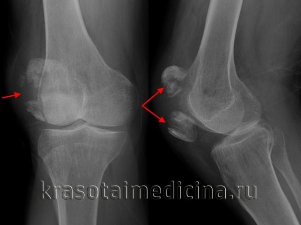 Перелом колена: лечение, симптомы, реабилитация