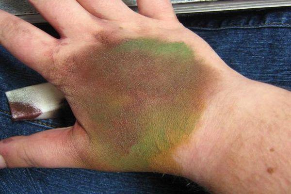 Химический ожог кожи: признаки, лечение и осложнения