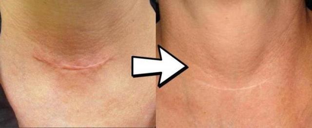 Как убрать шрамы от ожогов: мазь, лазер и другие средства