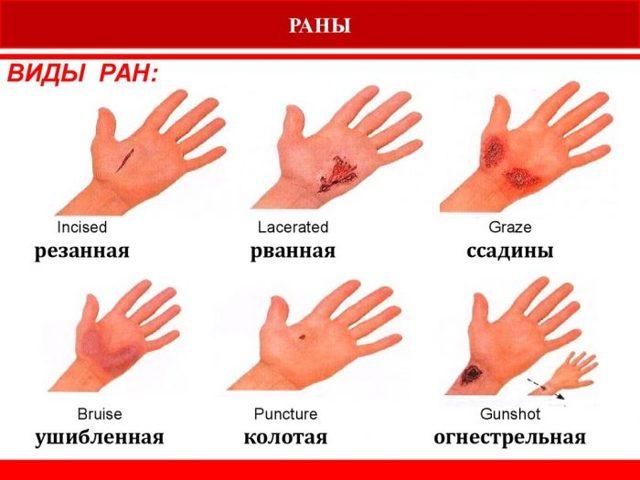 Первая помощь при ранах: виды ран и способы обработки