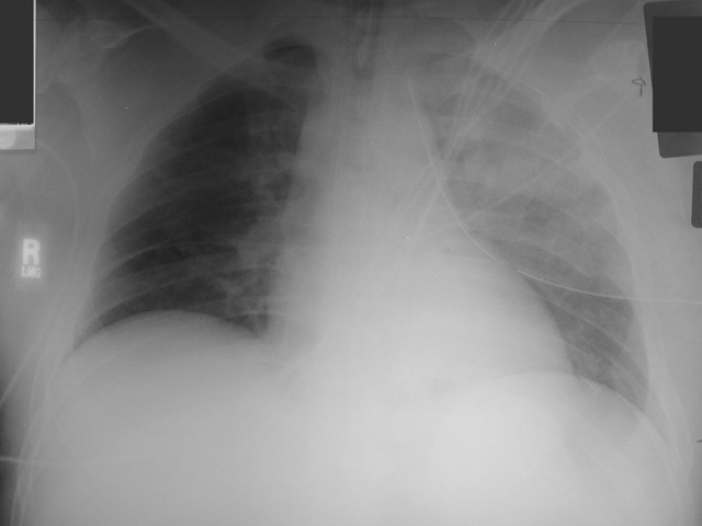Травма грудной клетки ушиб и перелом грудной клетки