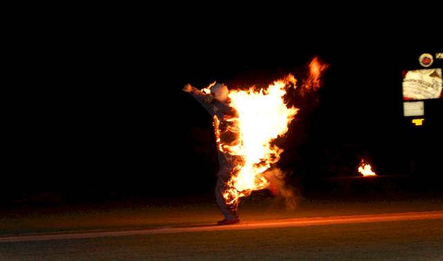 Ожоговый шок: причины, признаки, диагностика, первая помощь и лечение