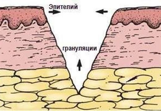 Грануляция раны - что это такое и какие виды грануляций существуют