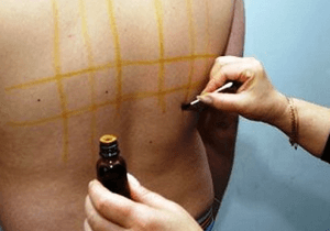 Как убрать ожог от йода на лице и на теле - методы лечения