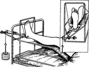 Перелом большой берцовой кости: лечение и реабилитация
