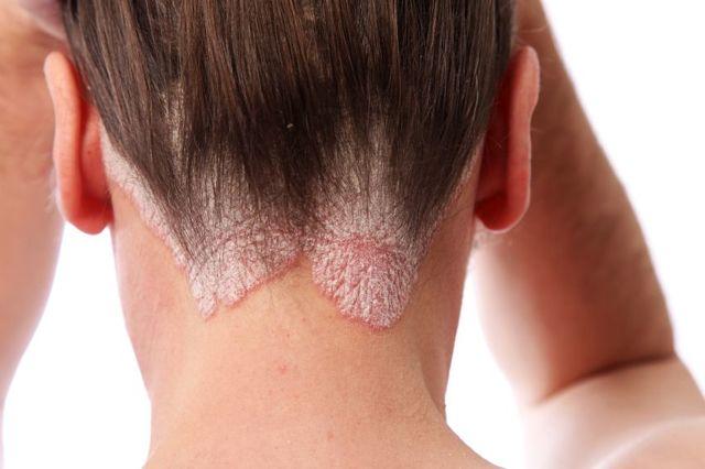Ожог от краски для волос: причины, опасность и лечение