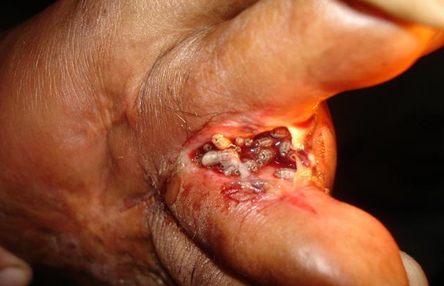 Опарыши в ране человека: что делать и методы лечения