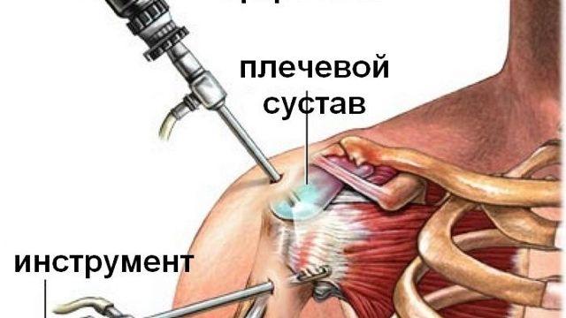 Операция при вывихе акромиального конца ключицы