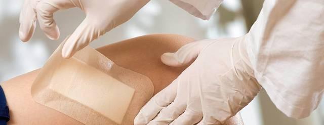 Правила наложения повязок на раны: первичная обработка