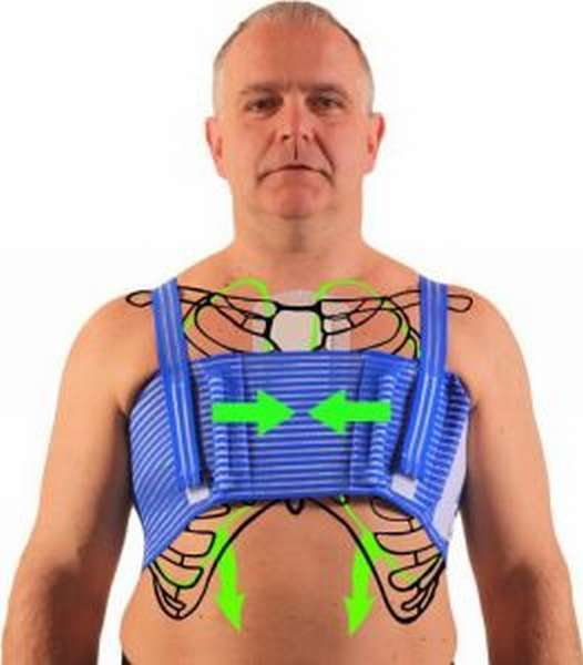 Перелом грудины: симптомы, первая помощь, лечение, реабилитация