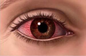 Что делать при ожоге глаза сваркой: виды капель, народные средства