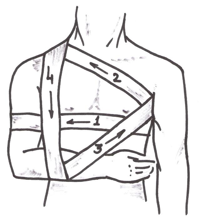 Повязка при переломе ключицы – косыночная и гипсовая повязка