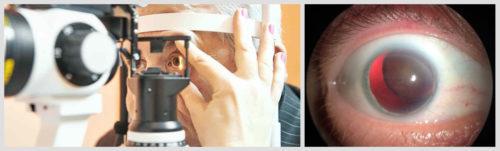 Подвывих хрусталика – лечение вывиха и подвывиха хрусталика глаза