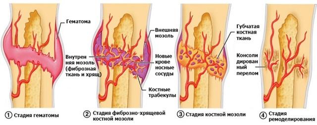 Сколько времени срастаются кости после перелома